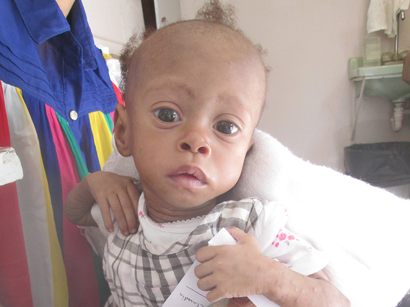 Malnourished Baby, Haiti, 8 months old